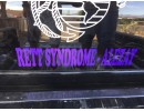 retts syndrome